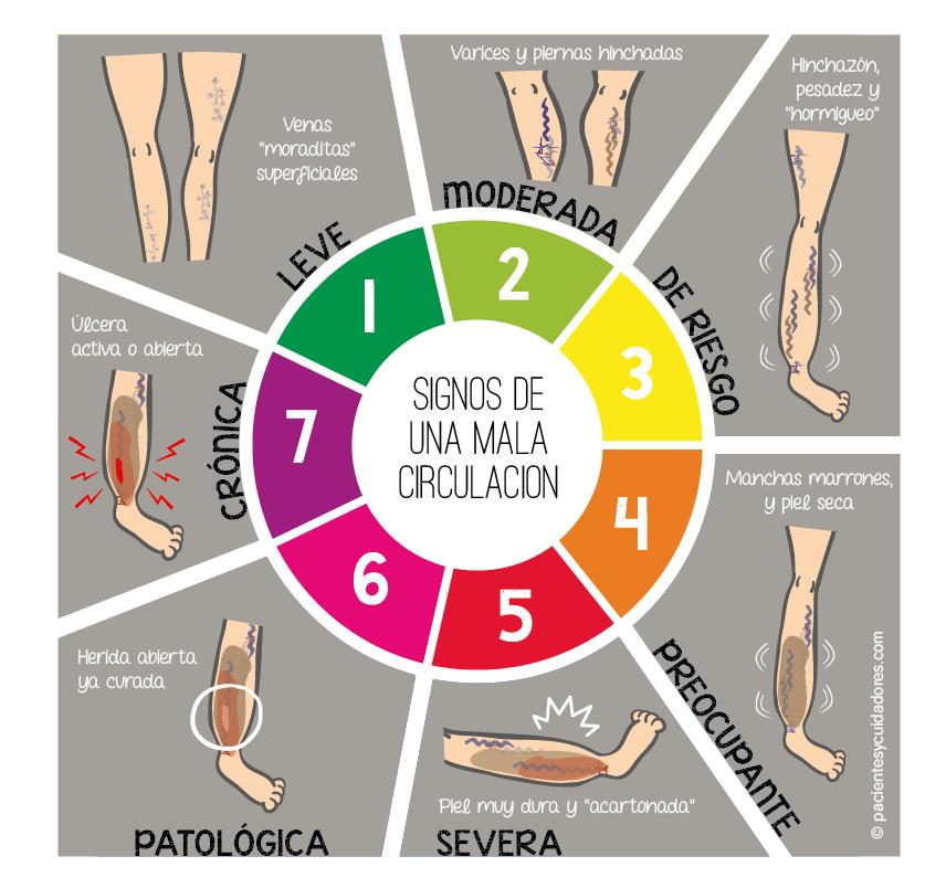 clasificación de menos a más gravedad en función de los signos visibles en las piernas