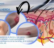 ¿Qué sucede en nuestra piel cuando tenemos una herida?